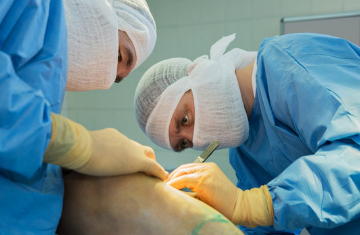 General Surgery at ved hospital